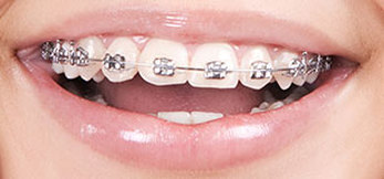 Best Braces in West Chicago Metal Braces