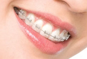 Best Braces in West Chicago Ceramic Braces