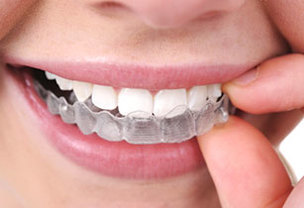 Best Braces in West Chicago Invisalign® braces